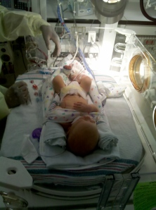 06 birth to nicu